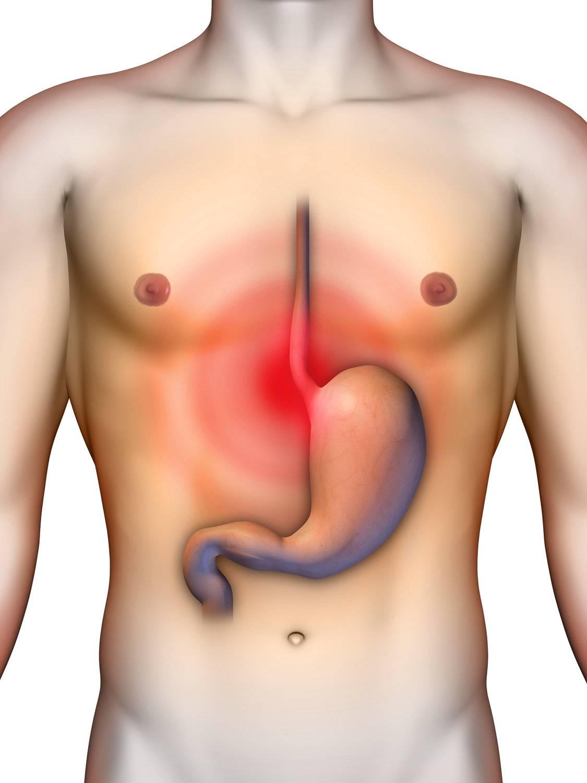 candida svamp symptom