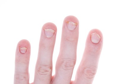 Psoriasis Nail Infection